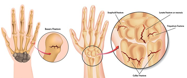 Wrist pain caused by hand fractures and wrist fractures