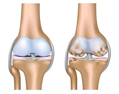 Knee osteoarthritis and joint pain illustration