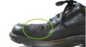 balloon patch orthopedic shoe